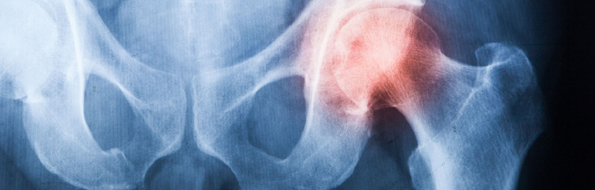 Pulsed Radiofrequency Lesioning for Chronic Hip Pain