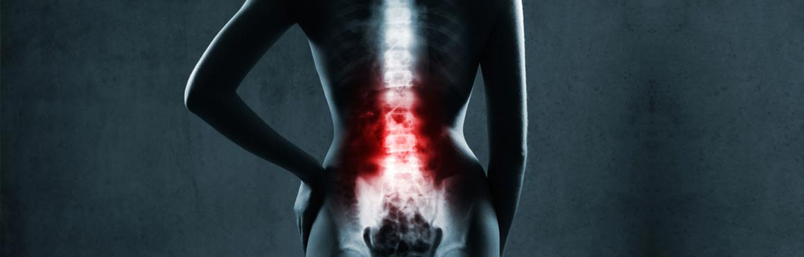 North Shore Pain Management Lumbar Spinal Stenosis