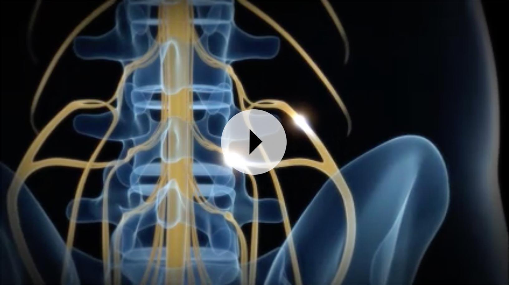 Overview Of Dorsal Root Ganglion (Drg) Stimulation