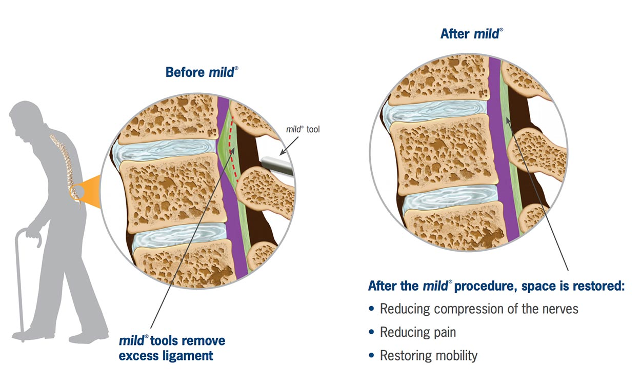 MILD (Minimally Invasive Lumbar Decompression)
