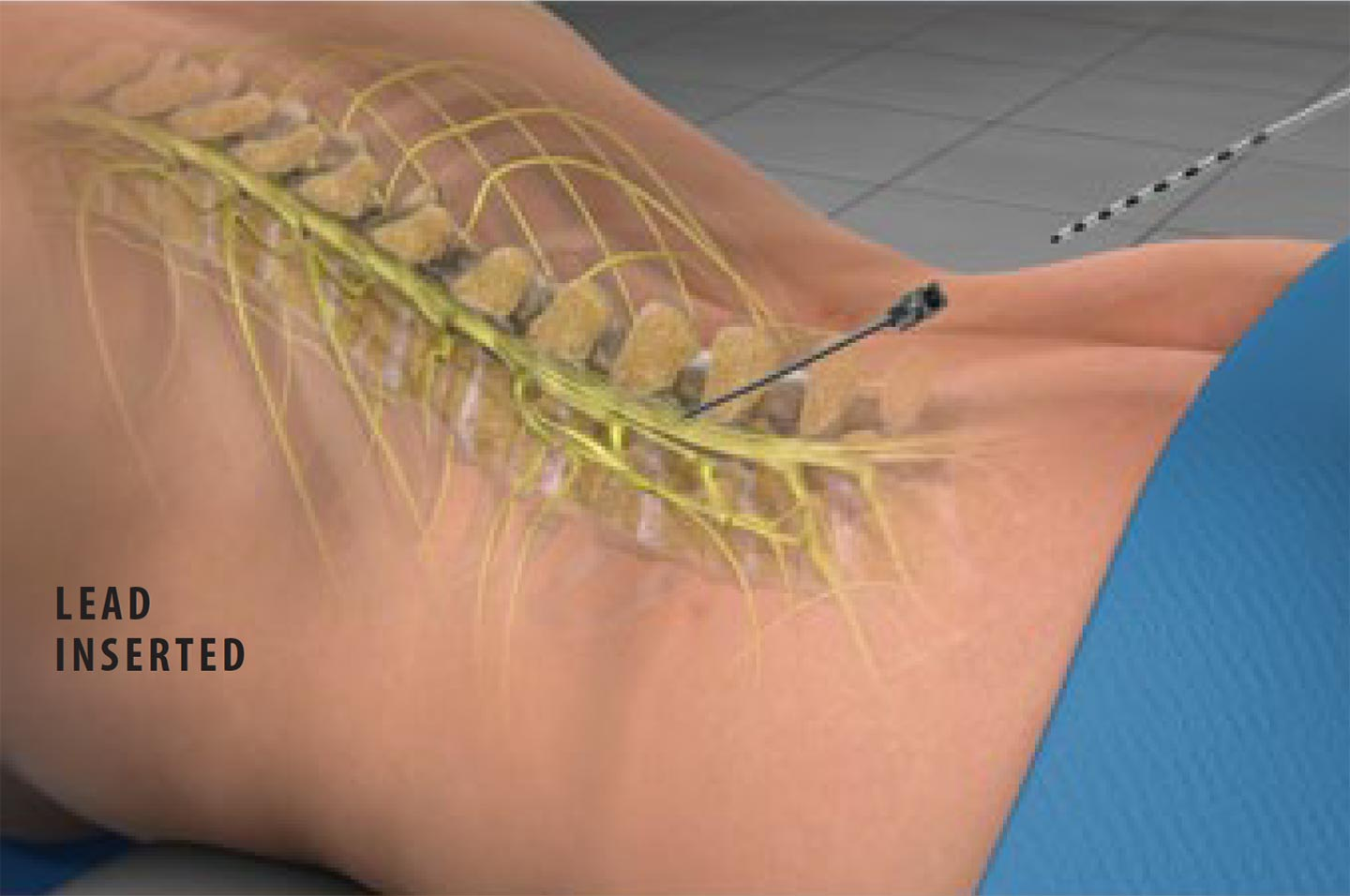 Spinal Cord Stimulation Lead Inserted